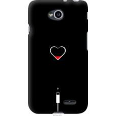 Чехол на LG L70 Dual D325 Подзарядка сердца (4274u-201)